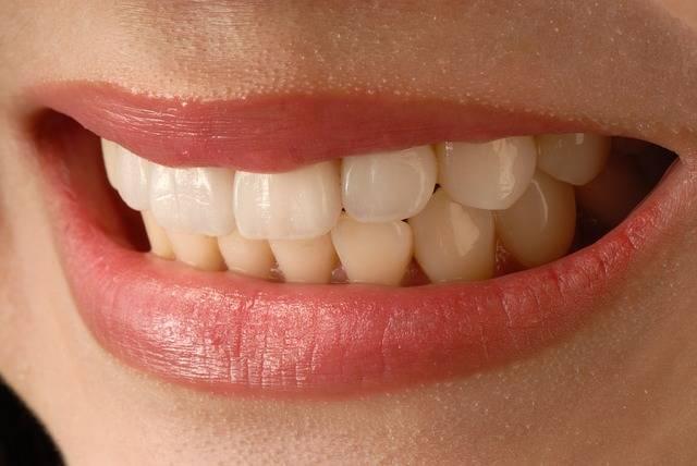 Asian Smile Anterior Teeth Veneer - Free photo on Pixabay (145970)