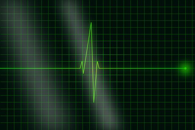 Electrocardiogram Ecg Heartbeat - Free vector graphic on Pixabay (252287)
