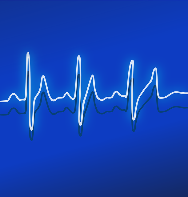 Ekg Heartbeat Frequency - Free vector graphic on Pixabay (252289)