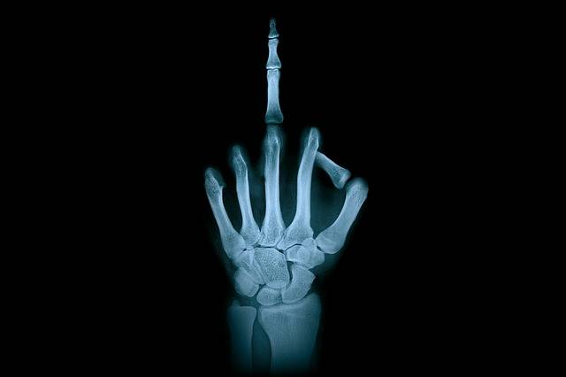 Hand Middle Finger X-Ray Radiation - Free photo on Pixabay (356790)