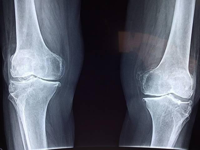 Knee X-Ray Medical - Free photo on Pixabay (395055)