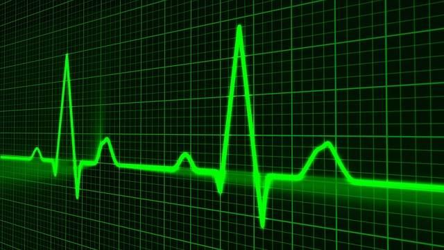 Pulse Trace Healthcare Medicine - Free image on Pixabay (409788)