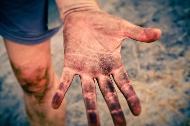 Hand Fingers Skin - Free photo on Pixabay (434306)