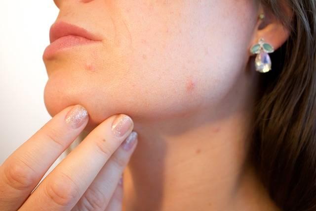Acne Pores Skin - Free photo on Pixabay (436138)