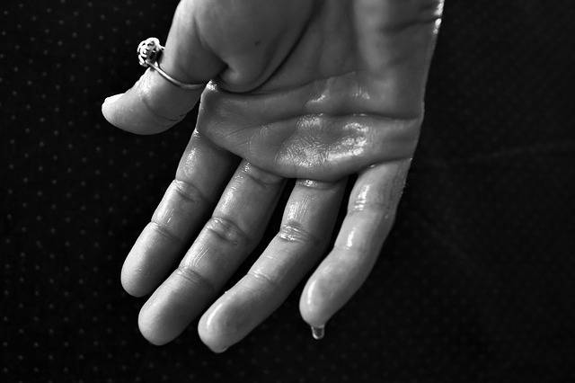 Hand Hyperhidrosis Sweating Sweat - Free photo on Pixabay (515644)