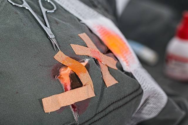 Wound Injury Hurt - Free photo on Pixabay (538923)