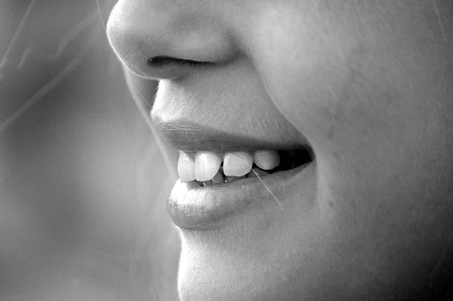 Smile Mouth Teeth - Free photo on Pixabay (596072)