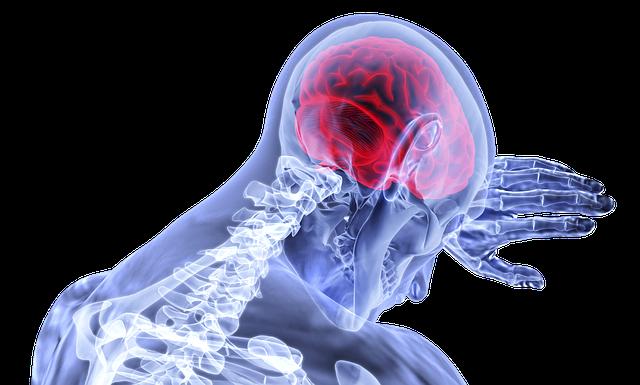 Brain Inflammation Stroke - Free image on Pixabay (717706)