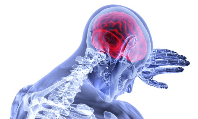 Brain Inflammation Stroke - Free image on Pixabay (727645)