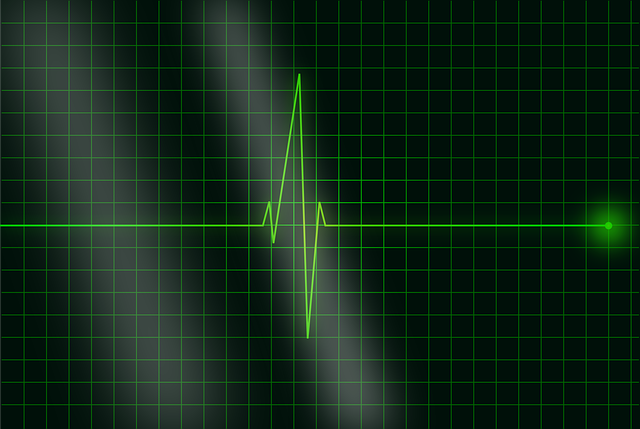 Electrocardiogram Ecg Heartbeat - Free vector graphic on Pixabay (752837)